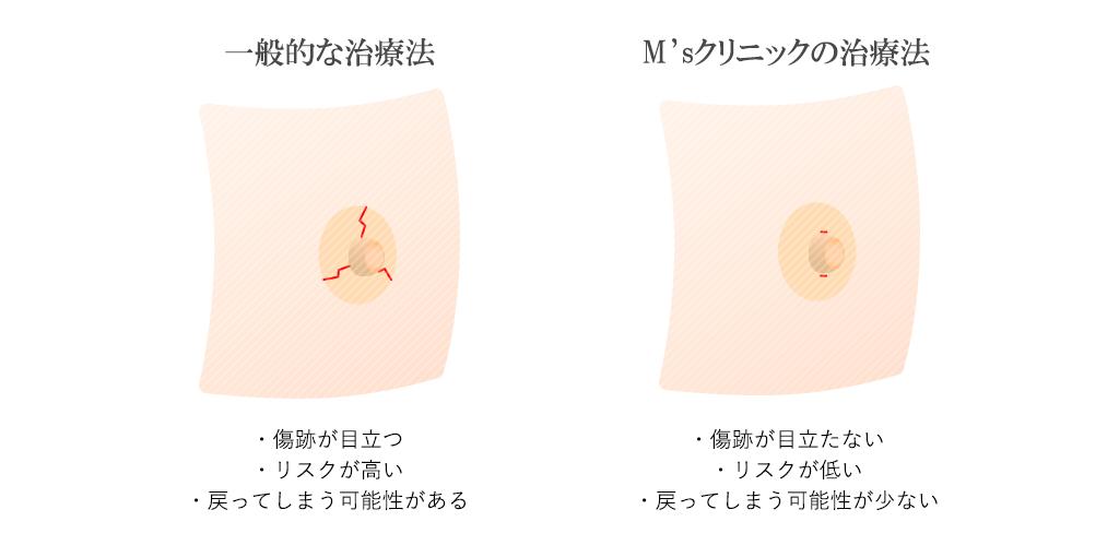 陥没乳首治療イメージ
