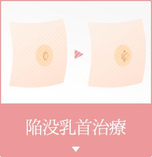 陥没乳首治療