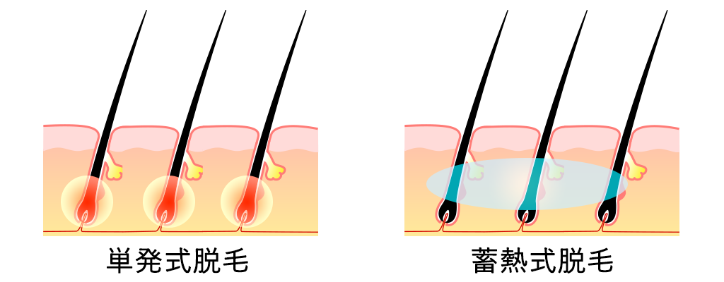 実は痛くない最新の「医療脱毛」イメージ