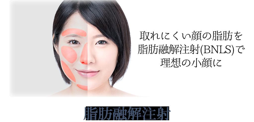 脂肪融解注射イメージ
