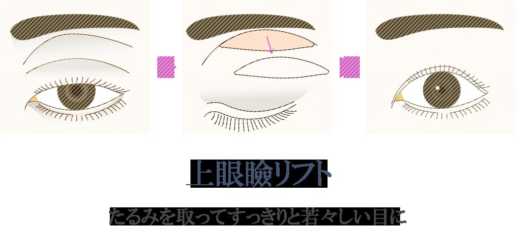 上眼瞼リフトイメージ
