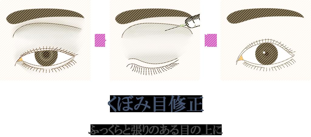 くぼみ目修正イメージ