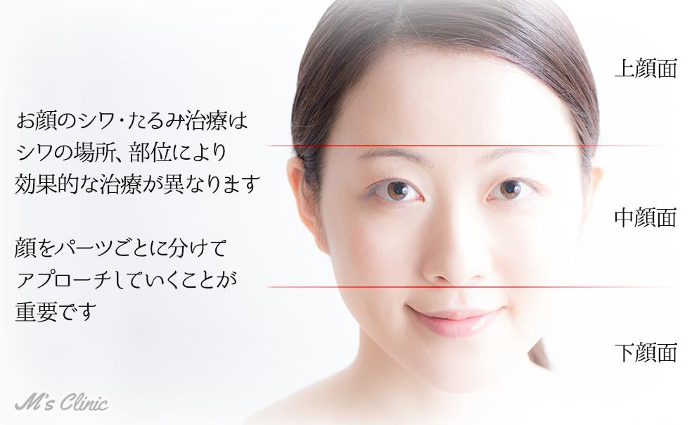 お顔のシワ・たるみ治療は シワの場所、部位により 効果的な治療が異なります  顔をパーツごとに分けて アプローチしていくことが 重要です