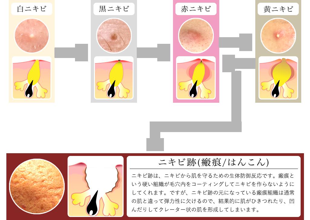 毛穴・ニキビ・ニキビ跡のイメージ