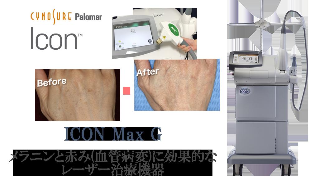 ICON Max Gのイメージ
