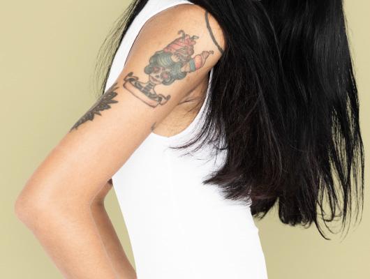 刺青除去 | 横浜市鶴見の形成・美容外科 エムズクリニック