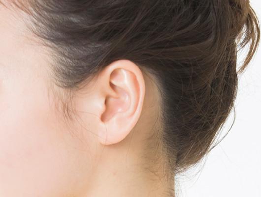 耳の形成の特徴