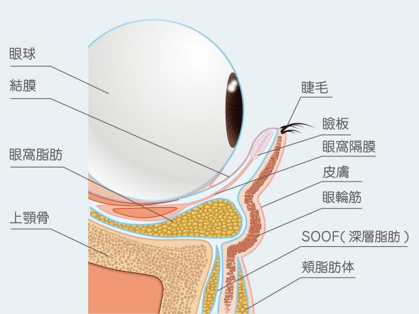 目の下のクマは皮膚を切らない裏ハムラ法/下瞼のたるみ取りはハムラ法で皮膚切除による治療