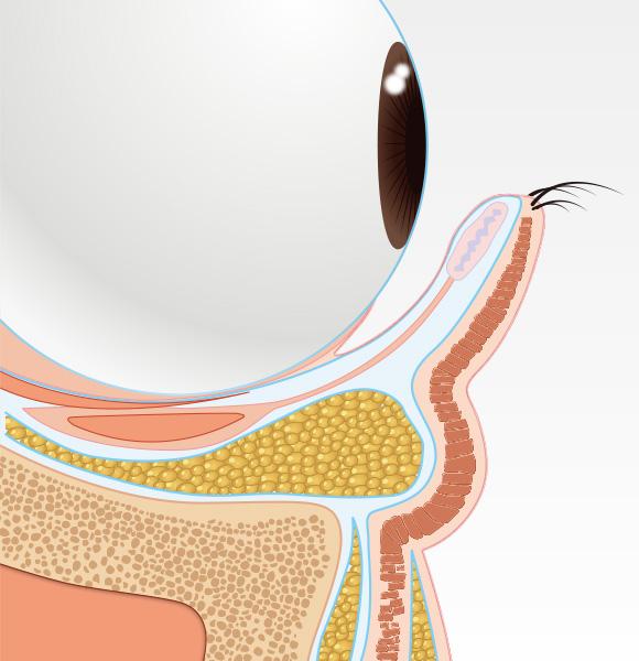 目の下のクマ治療step001