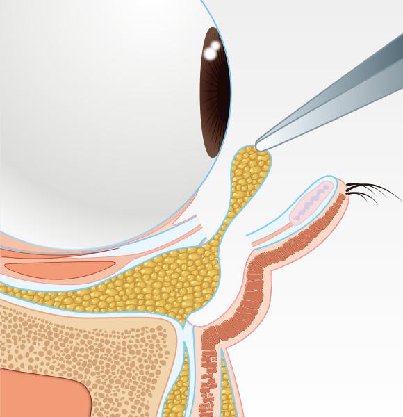 目の下のクマ治療step002