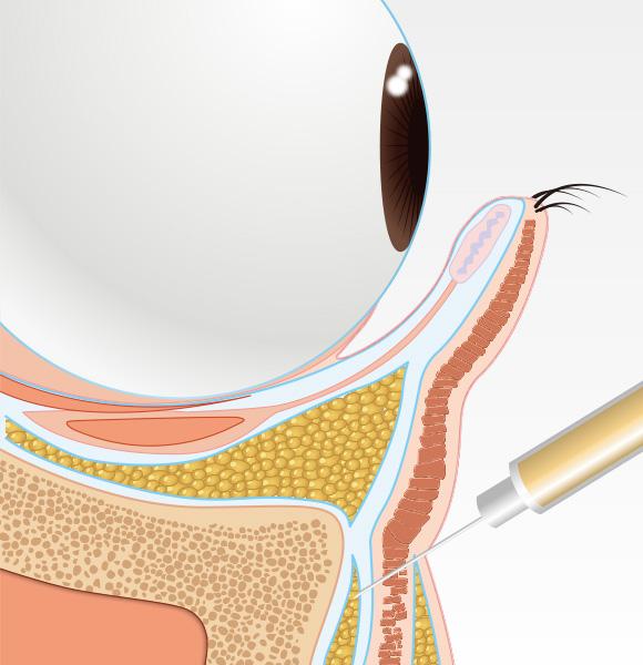 目の下のクマ治療step003