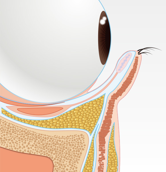 目の下のクマ治療step004