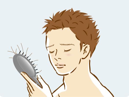 AGA(男性型脱毛症)の原因