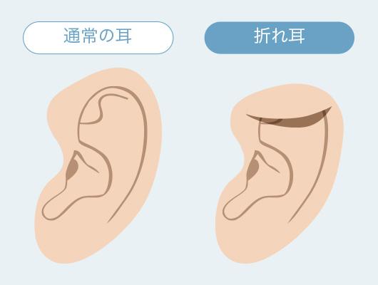 折れ耳の特徴