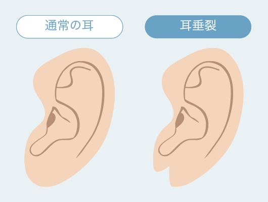 耳垂裂の特徴