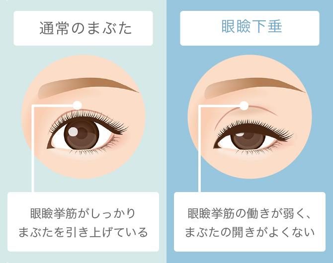 は と 眼瞼 下垂