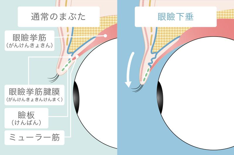 眼瞼下垂とは?