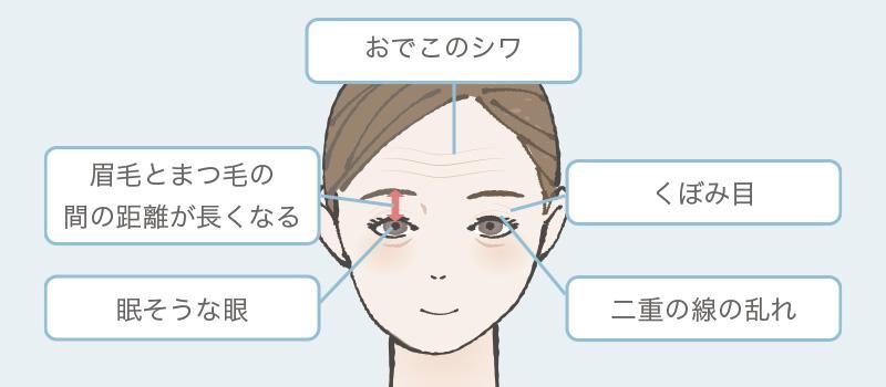 眼瞼下垂症の症例