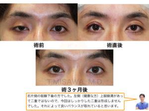 眼瞼下垂症(片側)