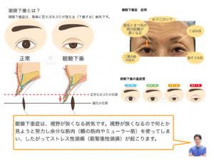 眼瞼下垂症手術 60代 女性