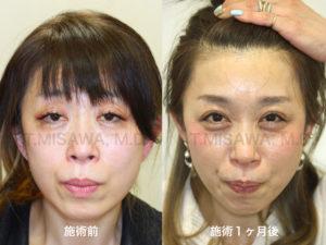 切らない眼瞼下垂症手術(経結膜法)