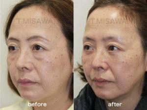 目の下のクマ・たるみ治療:脱脂+脂肪注入(ピュアグラフト)