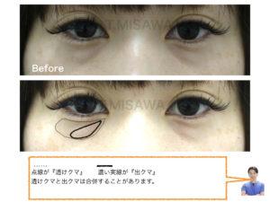 目の下のクマ(ヒアルロン酸)