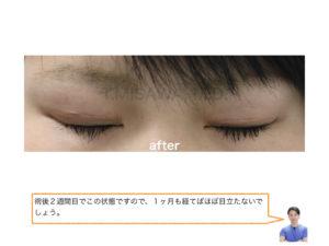 隠れ眼瞼下垂 二重(切開法)