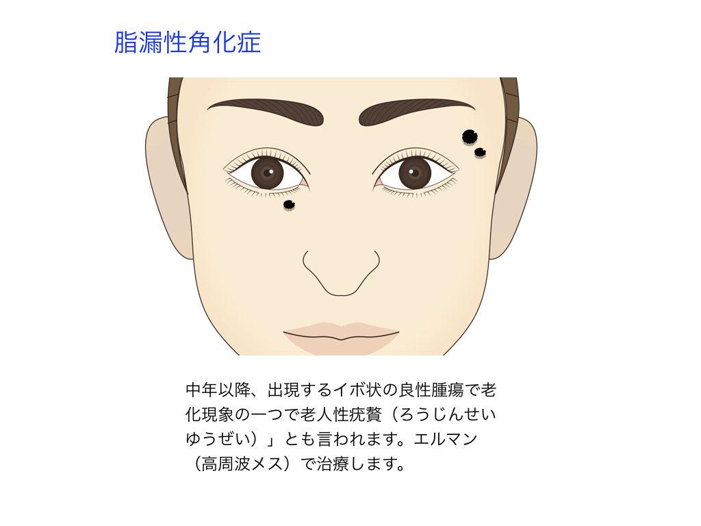 イボ(脂漏性角化症)