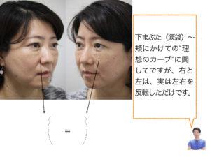 目の下のクマ治療 出クマ:脱脂+脂肪注入(ピュアグラフト)