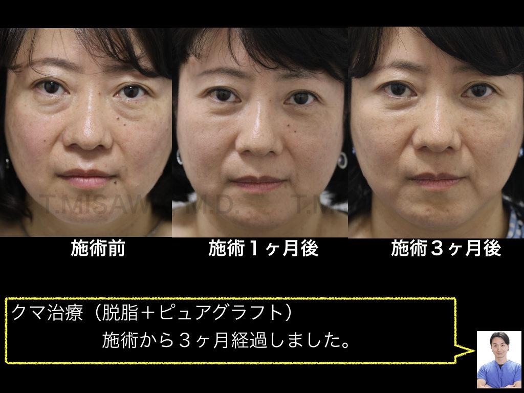 目の下 脱脂 東京 プラスト くり に っ く
