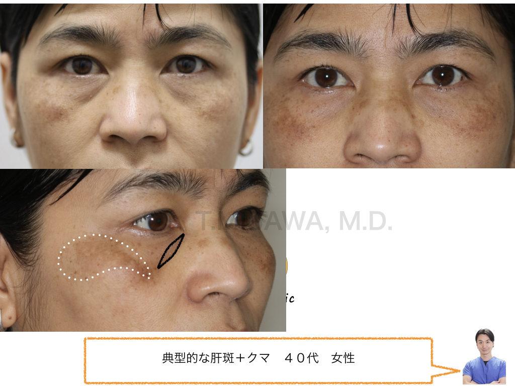 肝斑、クマ、目尻に対するノーダウンタイム治療