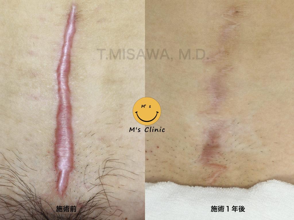 切開 傷 かゆい 帝王 帝王切開のケロイドの予防法・治療法!傷が痛い・かゆい?