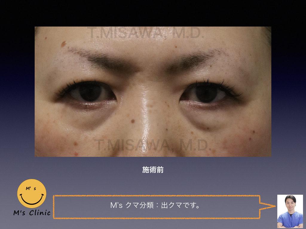 目の下のクマ治療:脱脂+脂肪注入(ピュアグラフト)