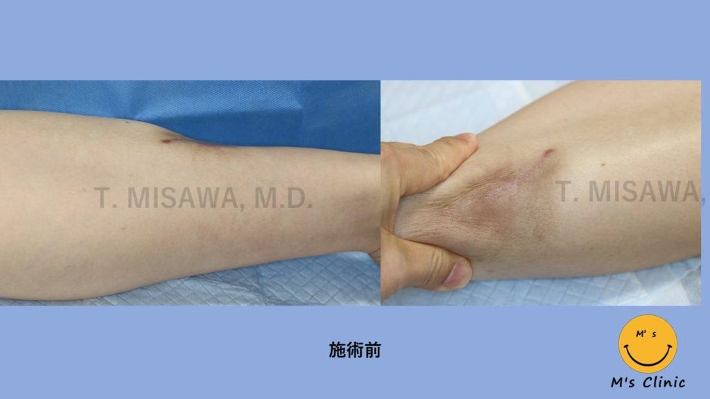 下肢(脛 すね)の変形:真皮脂肪移植治療