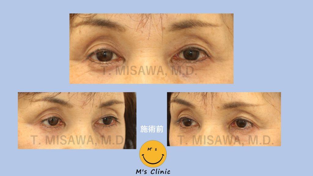 くぼみ目|腱膜性眼瞼下垂|