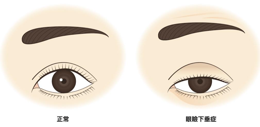 眼瞼下垂治療:保険診療とその費用や治療の流れについて、