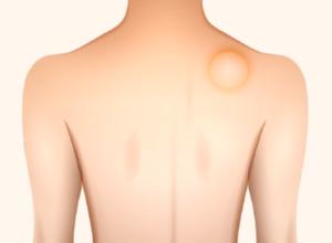【脂肪腫】まとめ:症状・診断・治療(手術)など一般的なことについて〜