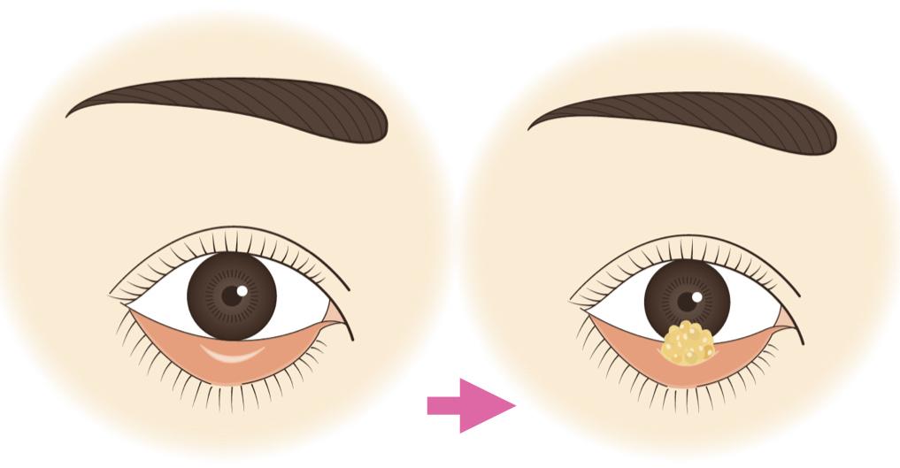 目の下のクマ治療 脱脂術