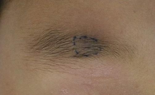 皮膚のできもの|石灰化上皮腫