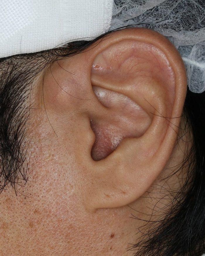 耳・できもの|横浜・鶴見|