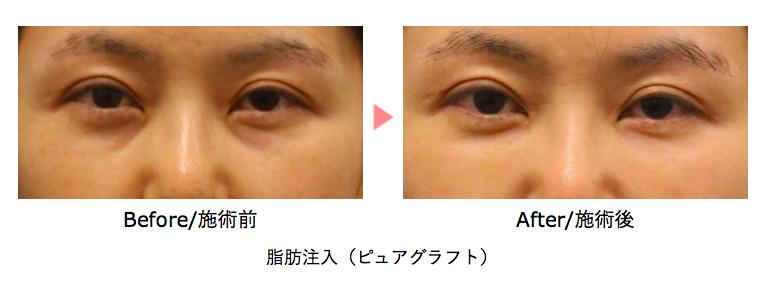 目の下のクマ治療 脂肪注入