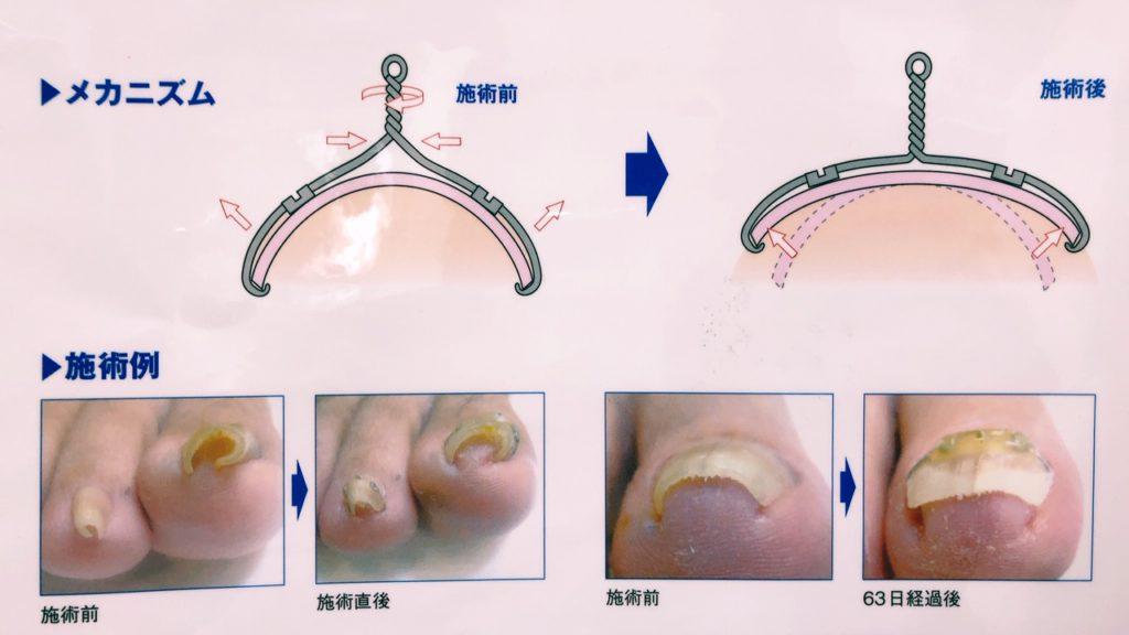 巻き爪 治療