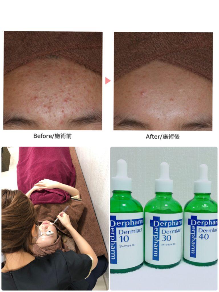 ニキビ肌  乾燥肌  敏感肌