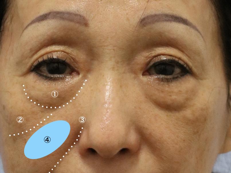 目の下 の たるみ 治療