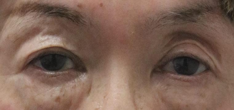くぼみ目① 眼瞼下垂性 フラッシュなし 治療前