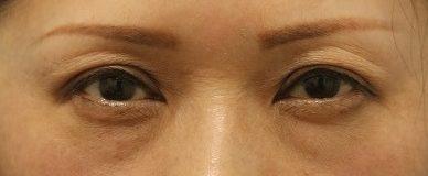 ヒアルロン酸では解消されないくぼみ目!(眼瞼下垂が原因!!)フラッシュなし