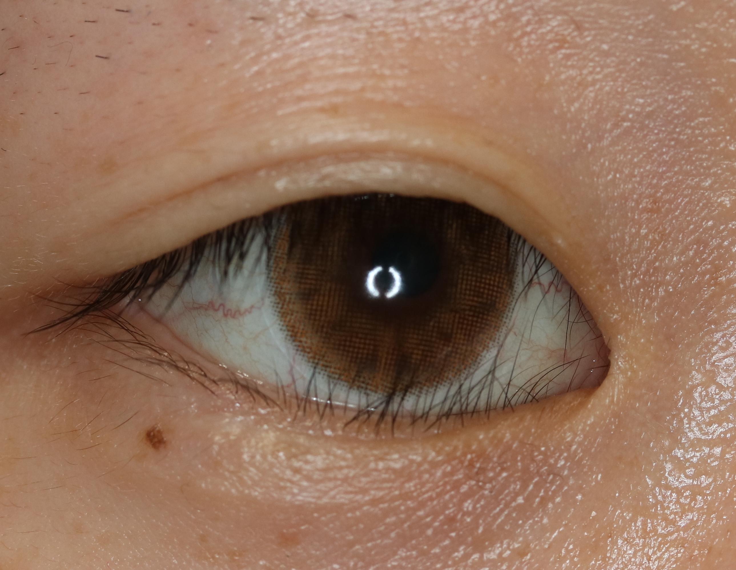 腫れ 下 まぶた 目