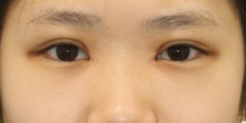 After/メイクなし(施術1ヶ月後)
