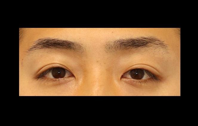 切らない眼瞼下垂症手術の他院修正は挙筋腱膜前転法で修正! 治療前